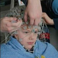 Electroencephalography (square)